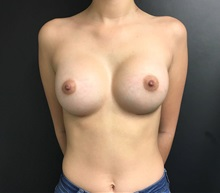 Breast Augmentation After Photo by Adam Schaffner, MD, FACS; New York, NY - Case 36886