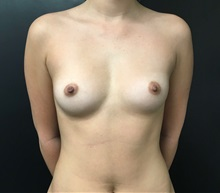 Breast Augmentation Before Photo by Adam Schaffner, MD, FACS; New York, NY - Case 36886