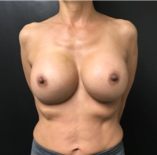 Breast Implant Revision After Photo by Adam Schaffner, MD, FACS; New York, NY - Case 37521