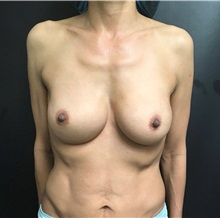 Breast Implant Revision Before Photo by Adam Schaffner, MD, FACS; New York, NY - Case 37521
