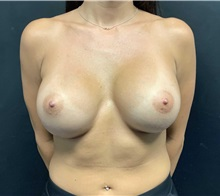 Breast Implant Revision After Photo by Adam Schaffner, MD, FACS; New York, NY - Case 37523