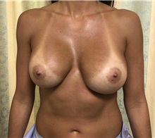 Breast Implant Revision Before Photo by Adam Schaffner, MD, FACS; New York, NY - Case 37523