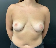 Breast Lift After Photo by Adam Schaffner, MD, FACS; New York, NY - Case 37524