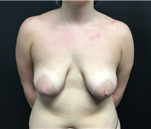 Breast Lift Before Photo by Adam Schaffner, MD, FACS; New York, NY - Case 37524