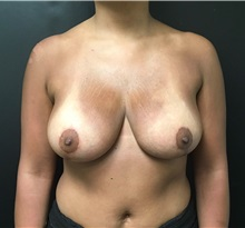 Breast Reduction After Photo by Adam Schaffner, MD, FACS; New York, NY - Case 37529