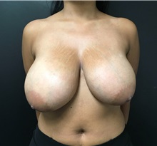 Breast Reduction Before Photo by Adam Schaffner, MD, FACS; New York, NY - Case 37529