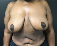 Breast Reduction After Photo by Adam Schaffner, MD, FACS; New York, NY - Case 37530