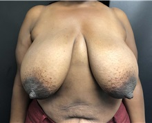 Breast Reduction Before Photo by Adam Schaffner, MD, FACS; New York, NY - Case 37530