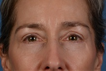 Eyelid Surgery After Photo by Christopher Derderian, MD; Dallas, TX - Case 33735