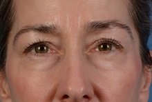 Eyelid Surgery Before Photo by Christopher Derderian, MD; Dallas, TX - Case 33735