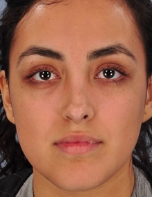 Rhinoplasty After Photo by Christopher Derderian, MD; Dallas, TX - Case 33868