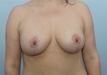Breast Lift After Photo by Keith Neaman, MD; Salem, OR - Case 31620