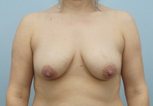 Breast Lift Before Photo by Keith Neaman, MD; Salem, OR - Case 31620