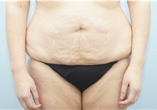 Tummy Tuck Before and After Photos   American Society of