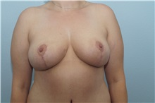 Breast Lift After Photo by Keith Neaman, MD; Salem, OR - Case 31625