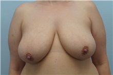 Breast Lift Before Photo by Keith Neaman, MD; Salem, OR - Case 31625