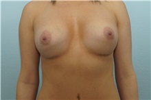 Breast Augmentation After Photo by Keith Neaman, MD; Salem, OR - Case 31627