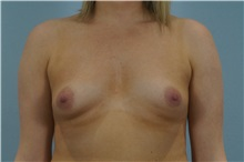 Breast Augmentation Before Photo by Keith Neaman, MD; Salem, OR - Case 31627