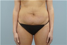 Tummy Tuck Before Photo by Keith Neaman, MD; Salem, OR - Case 31628