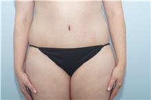 Tummy Tuck After Photo by Keith Neaman, MD; Salem, OR - Case 31631