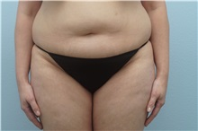 Tummy Tuck Before Photo by Keith Neaman, MD; Salem, OR - Case 31631