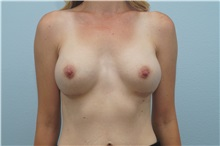 Breast Augmentation After Photo by Keith Neaman, MD; Salem, OR - Case 31656