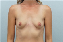 Breast Augmentation Before Photo by Keith Neaman, MD; Salem, OR - Case 31656