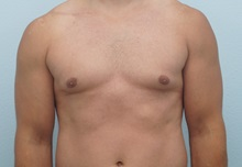 Male Breast Reduction After Photo by Keith Neaman, MD; Salem, OR - Case 31657