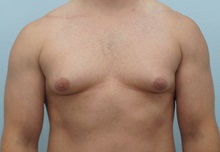 Male Breast Reduction Before Photo by Keith Neaman, MD; Salem, OR - Case 31657