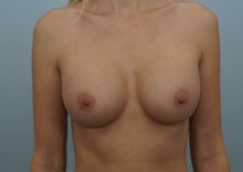 Breast Augmentation After Photo by Keith Neaman, MD; Salem, OR - Case 31659