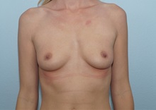 Breast Augmentation Before Photo by Keith Neaman, MD; Salem, OR - Case 31659