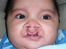 Cleft Lip and Palate Repair Before Photo by Rachel Ruotolo, MD; Garden City, NY - Case 29105