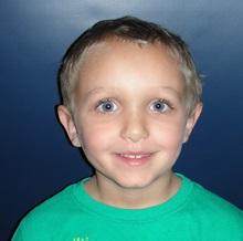 Ear Surgery After Photo by Rachel Ruotolo, MD; Garden City, NY - Case 29113
