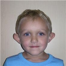Ear Surgery Before Photo by Rachel Ruotolo, MD; Garden City, NY - Case 29113