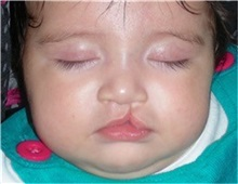 Cleft Lip and Palate Repair Before Photo by Rachel Ruotolo, MD; Garden City, NY - Case 30302