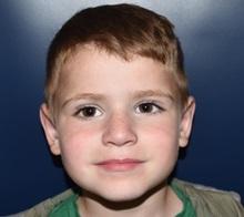 Ear Surgery After Photo by Rachel Ruotolo, MD; Garden City, NY - Case 30308