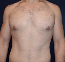 Male Breast Reduction After Photo by Rachel Ruotolo, MD; Garden City, NY - Case 34075