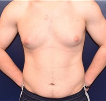 Male Breast Reduction Before Photo by Rachel Ruotolo, MD; Garden City, NY - Case 34075
