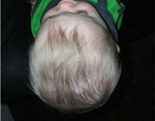 Craniosynostosis After Photo by Rachel Ruotolo, MD; Garden City, NY - Case 34080