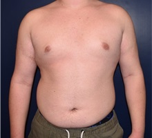 Male Breast Reduction After Photo by Rachel Ruotolo, MD; Garden City, NY - Case 34088