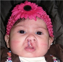 Cleft Lip and Palate Repair Before Photo by Rachel Ruotolo, MD; Garden City, NY - Case 34156