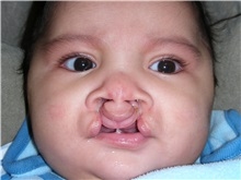 Cleft Lip and Palate Repair Before Photo by Rachel Ruotolo, MD; Garden City, NY - Case 34165