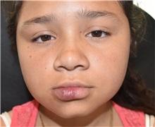 Vascular Malformations Before Photo by Rachel Ruotolo, MD; Garden City, NY - Case 34199