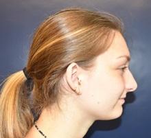 Ear Surgery Before Photo by Rachel Ruotolo, MD; Garden City, NY - Case 34204