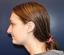 Ear Surgery After Photo by Rachel Ruotolo, MD; Garden City, NY - Case 34204