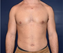 Male Breast Reduction After Photo by Rachel Ruotolo, MD; Garden City, NY - Case 34209