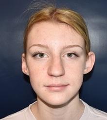 Ear Surgery Before Photo by Rachel Ruotolo, MD; Garden City, NY - Case 34213