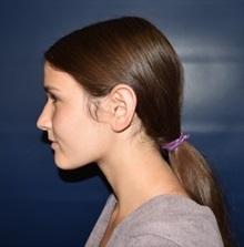 Ear Surgery After Photo by Rachel Ruotolo, MD; Garden City, NY - Case 34813