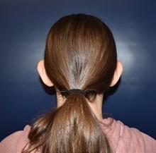 Ear Surgery Before Photo by Rachel Ruotolo, MD; Garden City, NY - Case 34813
