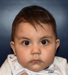 Craniosynostosis After Photo by Rachel Ruotolo, MD; Garden City, NY - Case 35539